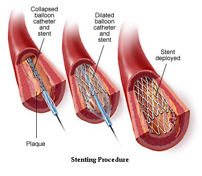 January 29 2010 St Joseph S Stents Device Defect Or
